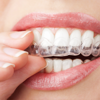 Invisalign Dentist in Bridgeland, Calgary